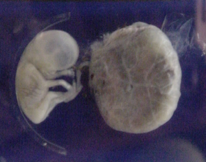 3 Month Old Baby in Womb