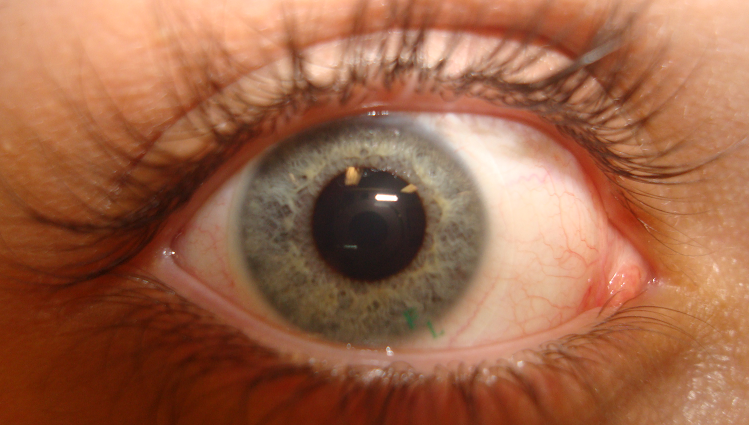OPINION: Leonard Lance Needs a Clearer View of the Contact Lens Debate